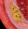 September is Cholesterol Education Month