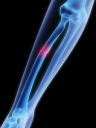 Advice from FDA: Possible Increased Risk of Bone Fractures With Certain Antacid Drugs